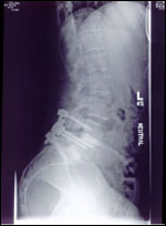Beth's Spine Post-Surgery